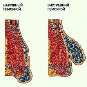 tromboosi sümptomid