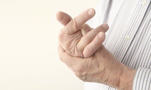 чем лечить артрит кистей рук