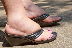 Опухают ступни ног. Скопление жидкости при ПМС и во время ...