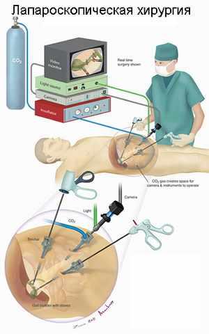 poliklininė hipertenzija